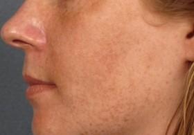 кафяви петна по лицето