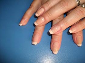 гъбички по ноктите на ръцете - лечение