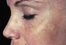 Крем против петна по лицето