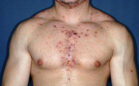 Акне и черни точки по тялото