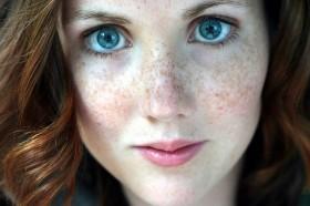 Лечение на петна по лицето