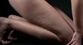 Какаово масло срещу стрии, целулит и кожни раздразнения
