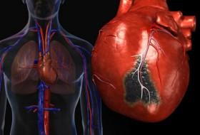 infarkt na miokarda_44