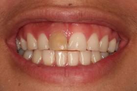 Жълти зъби