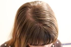 мазната коса