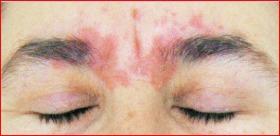 Лечение на себореен дерматит