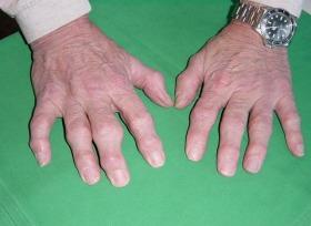 полиартрит-симптоми