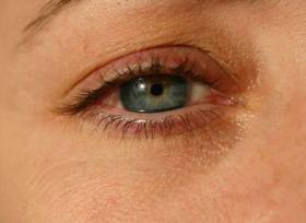 Лечение на сълзене на очите