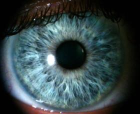 атрофия на зрителния нерв
