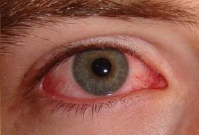 Глаукома-симптоми