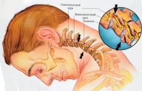 остеохондроза