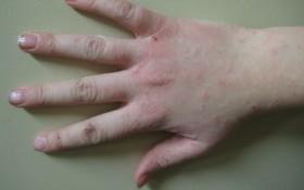 атопичен дерматит