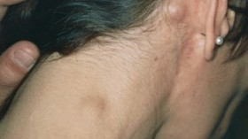лимфом