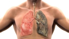 възпаление на белите дробове
