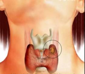 рак на щитовидната жлеза