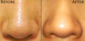 разширени пори на носа