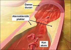 Лечение на атеросклероза
