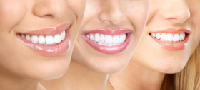 white-teeth-after-teeth-whitening