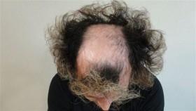 Присаждане на коса