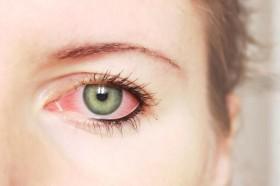 cherveni-ochi