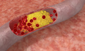 Как се познават високи нива на холестерол в кръвта?
