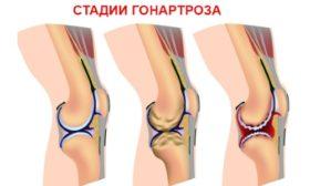 Какво се пие при артроза на коляното