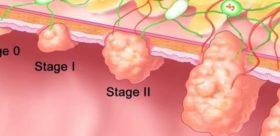 Рак на дебелото черво – кое го издава?