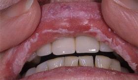 Гъбички в устната кухина - кое помага?