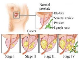 prostate-cancer-12-638
