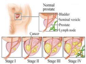 prostate-cancer-12-638