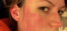 studova-alergiq