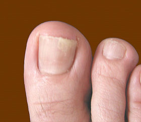 bolesti po noktite_44