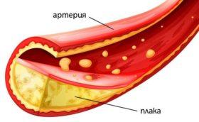 holesterola_3