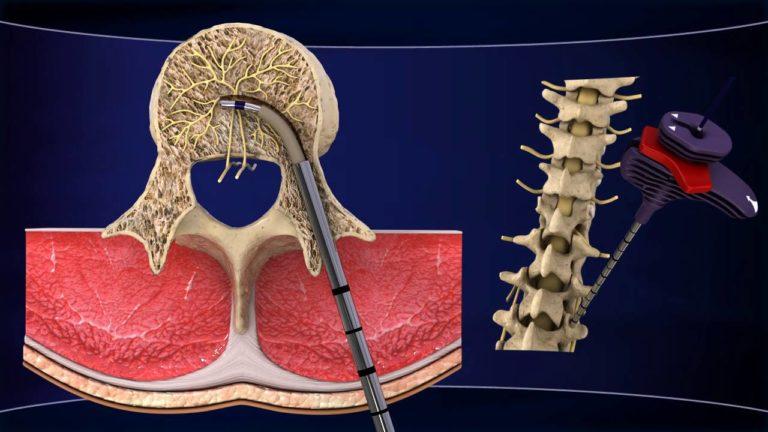 Болка в гърба: медицината откри нов ефективен метод за..