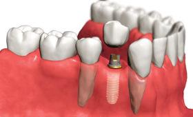 implant-rod