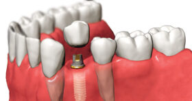 Цена на поставяне на зъбни импланти
