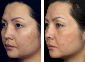 fraxel_skin_resurfacing-before_after-5