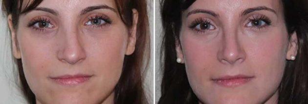 изправяне на 01 нос без операция