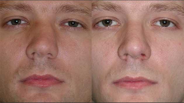 изправяне 03 на нос без операция