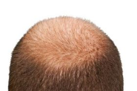 alopecia_9