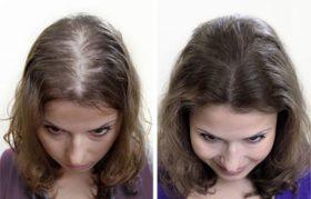 alopeciq-pri-jenite