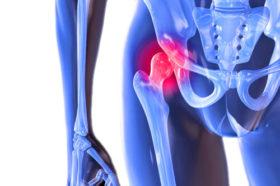 hip-arthritis-symptoms-and-treatment