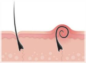 Крем за подкожни косми