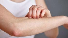 psoriasis-itch-scratch-skin
