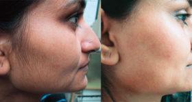 окосмяване по лицето