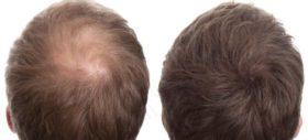 alopecia-88