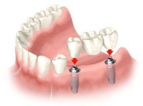 zabni implanti_44