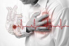 infarkt_5