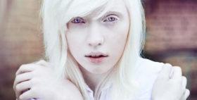 albinizam_9