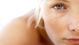 пигментни петна по лицето